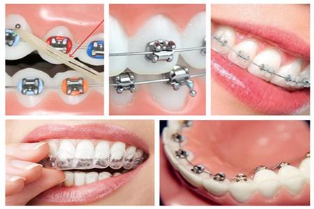 陶瓷自锁牙套_洛阳牙套多少钱 - 牙齿稀疏 - 洛阳涧西维乐口腔门诊部有限公司